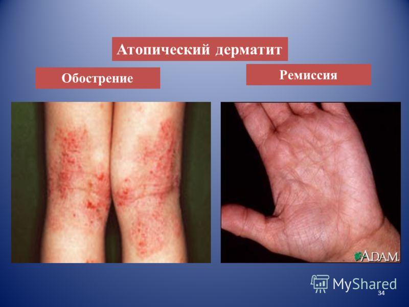 Клинические проявления аллергической крапивницы (а), гигантская крапивница (б). Крапивница – распространенная группа заболеваний, характеризующихся воспалительным изменением кожи и/или слизистых оболочек, появлением диффузной либо ограниченной сыпи в