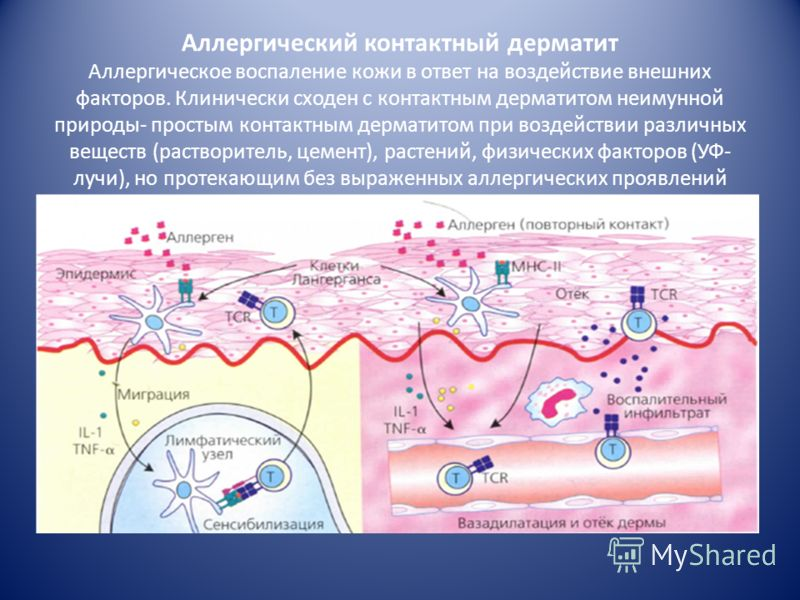 3. Патофизиологическая стадия ГЗТ может протекать в любых органах и тканях в зависимости от локализации аллергена Во всех случаях развивается воспаление продуктивного типа, которое характеризуется мощной клеточной инфильтрацией макрофагами и Т-лимфоц
