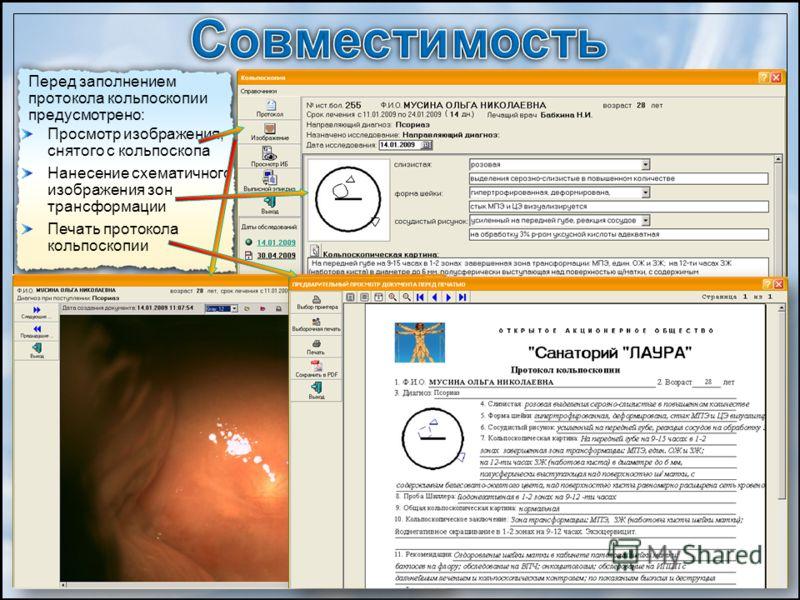 Перед заполнением протокола кольпоскопии предусмотрено: Просмотр изображения, снятого с кольпоскопа Нанесение схематичного изображения зон трансформации Печать протокола кольпоскопии