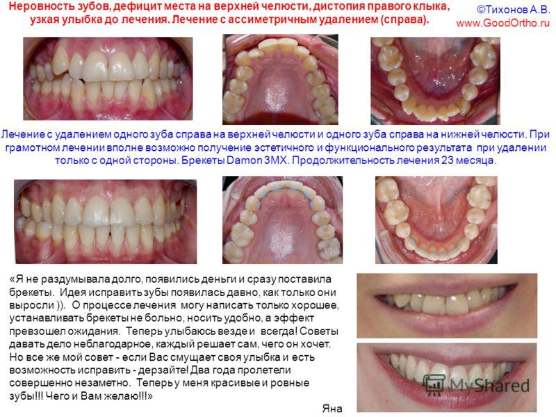 Лечение с удалением одного зуба справа на верхней челюсти и одного зуба справа на нижней челюсти. При грамотном лечении вполне возможно получение эстетичного и функционального результата при удалении только с одной стороны. Брекеты Damon 3MX. Продолж