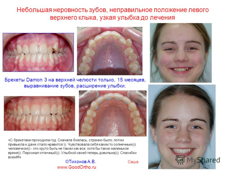 Небольшая неровность зубов, неправильное положение левого верхнего клыка, узкая улыбка до лечения Брекеты Damon 3 на верхней челюсти только, 15 месяцев, выравнивание зубов, расширение улыбки. «C брекетами проходила год. Cначала боялась, стремно было,