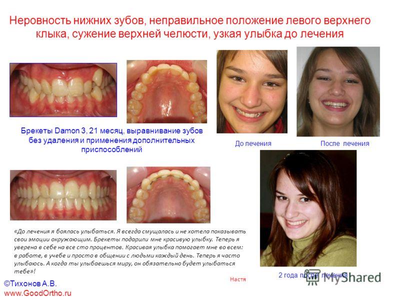 как выровнять зубы после удаления зубов мужрости если