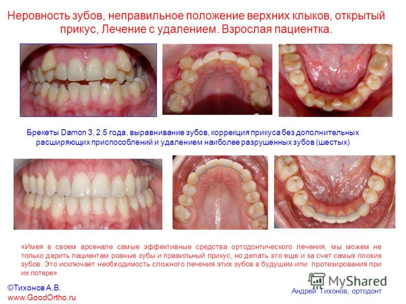 Неровность зубов, неправильное положение верхних клыков, открытый прикус, Лечение c удалением. Взрослая пациентка. Брекеты Damon 3, 2.5 года, выравнивание зубов, коррекция прикуса без дополнительных расширяющих приспособлений и удалением наиболее раз