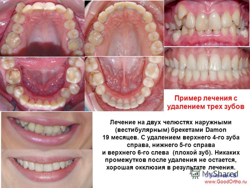 Пример лечения с удалением трех зубов Лечение на двух челюстях наружными (вестибулярным) брекетами Damon 19 месяцев. С удалением верхнего 4-го зуба справа, нижнего 5-го справа и верхнего 6-го слева (плохой зуб). Никаких промежутков после удаления не