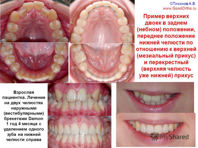 Пример верхних двоек в заднем (небном) положении, переднее положение нижней челюсти по отношению к верхней (мезиальный прикус) и перекрестный (верхняя челюсть уже нижней) прикус Взрослая пациентка. Лечение на двух челюстях наружными (вестибулярными)