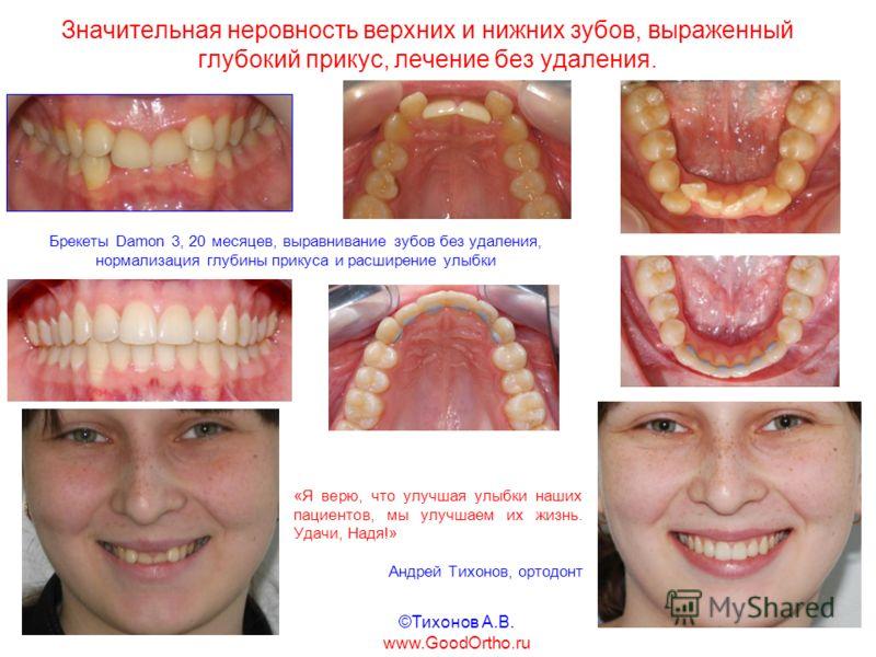 Значительная неровность верхних и нижних зубов, выраженный глубокий прикус, лечение без удаления. «Я верю, что улучшая улыбки наших пациентов, мы улучшаем их жизнь. Удачи, Надя!» Андрей Тихонов, ортодонт Брекеты Damon 3, 20 месяцев, выравнивание зубо