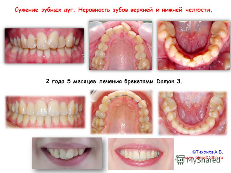 2 года 5 месяцев лечения брекетами Damon 3. Сужение зубных дуг. Неровность зубов верхней и нижней челюсти. ©Тихонов А.В. www.GoodOrtho.ru