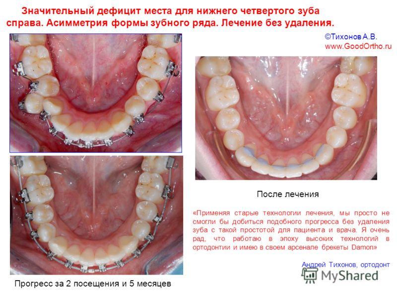 Значительный дефицит места для нижнего четвертого зуба справа. Асимметрия формы зубного ряда. Лечение без удаления. Прогресс за 2 посещения и 5 месяцев «Применяя старые технологии лечения, мы просто не смогли бы добиться подобного прогресса без удале