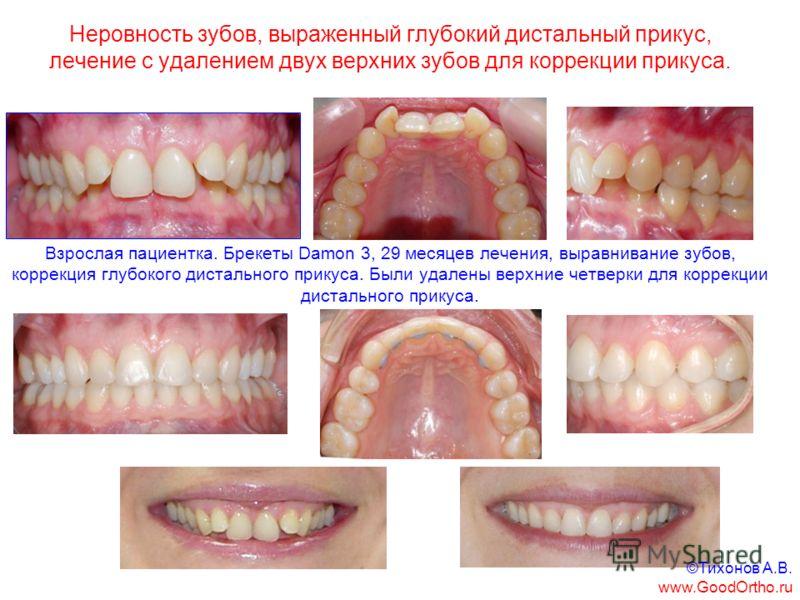 Неровность зубов, выраженный глубокий дистальный прикус, лечение с удалением двух верхних зубов для коррекции прикуса. Взрослая пациентка. Брекеты Damon 3, 29 месяцев лечения, выравнивание зубов, коррекция глубокого дистального прикуса. Были удалены