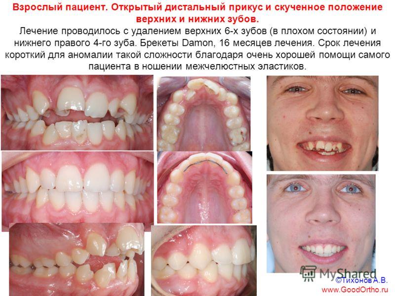 Взрослый пациент. Открытый дистальный прикус и скученное положение верхних и нижних зубов. Лечение проводилось с удалением верхних 6-х зубов (в плохом состоянии) и нижнего правого 4-го зуба. Брекеты Damon, 16 месяцев лечения. Срок лечения короткий дл