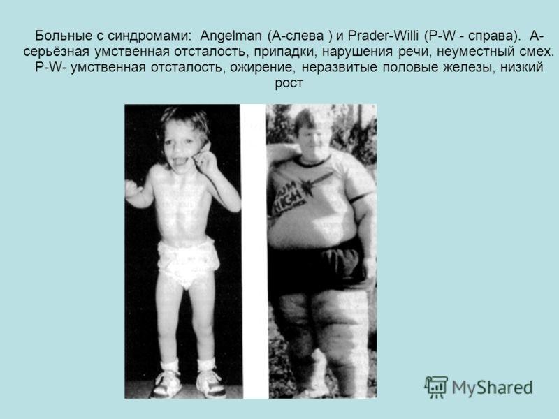 Больные с синдромами: Angelman (А-слева ) и Prader-Willi (P-W - справа). A- серьёзная умственная отсталость, припадки, нарушения речи, неуместный смех. P-W- умственная отсталость, ожирение, неразвитые половые железы, низкий рост