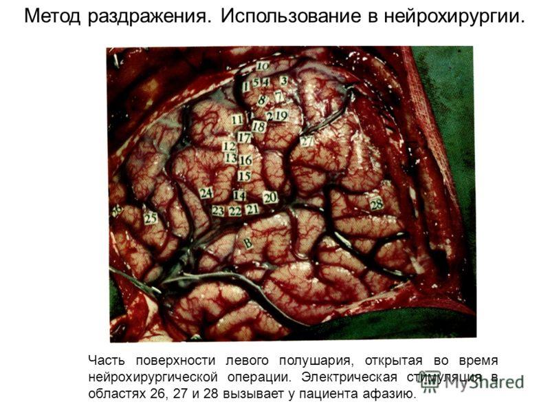Часть поверхности левого полушария, открытая во время нейрохирургической операции. Электрическая стимуляция в областях 26, 27 и 28 вызывает у пациента афазию. Метод раздражения. Использование в нейрохирургии.
