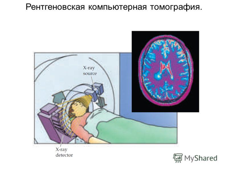 Рентгеновская компьютерная томография.
