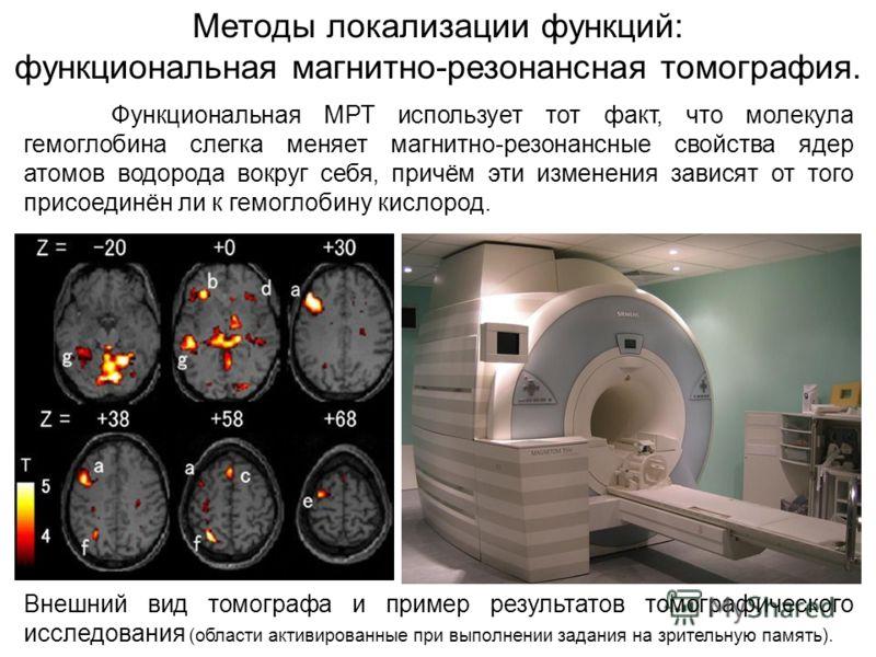 Внешний вид томографа и пример результатов томографического исследования (области активированные при выполнении задания на зрительную память). Методы локализации функций: функциональная магнитно-резонансная томография. Функциональная МРТ использует т