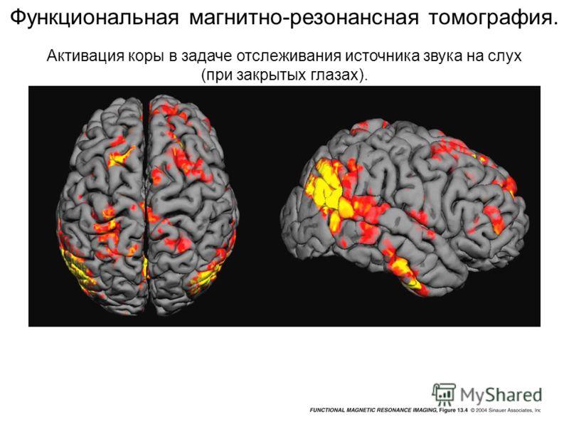 Активация коры в задаче отслеживания источника звука на слух (при закрытых глазах). Функциональная магнитно-резонансная томография.