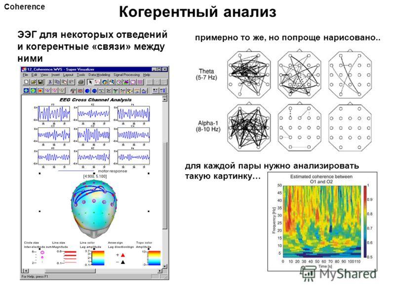 Когерентный анализ Coherence ЭЭГ для некоторых отведений и когерентные «связи» между ними примерно то же, но попроще нарисовано.. для каждой пары нужно анализировать такую картинку…
