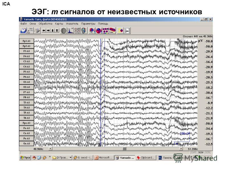 ЭЭГ: m сигналов от неизвестных источников ICA