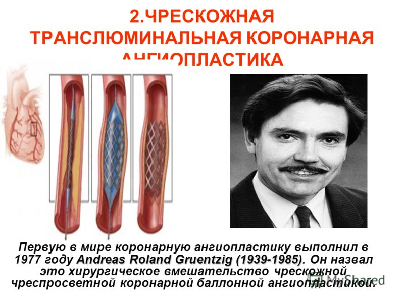 2.ЧРЕСКОЖНАЯ ТРАНСЛЮМИНАЛЬНАЯ КОРОНАРНАЯ АНГИОПЛАСТИКА Andreas Roland Gruentzig (1939-1985) Первую в мире коронарную ангиопластику выполнил в 1977 году Andreas Roland Gruentzig (1939-1985). Он назвал это хирургическое вмешательство чрескожной чреспро