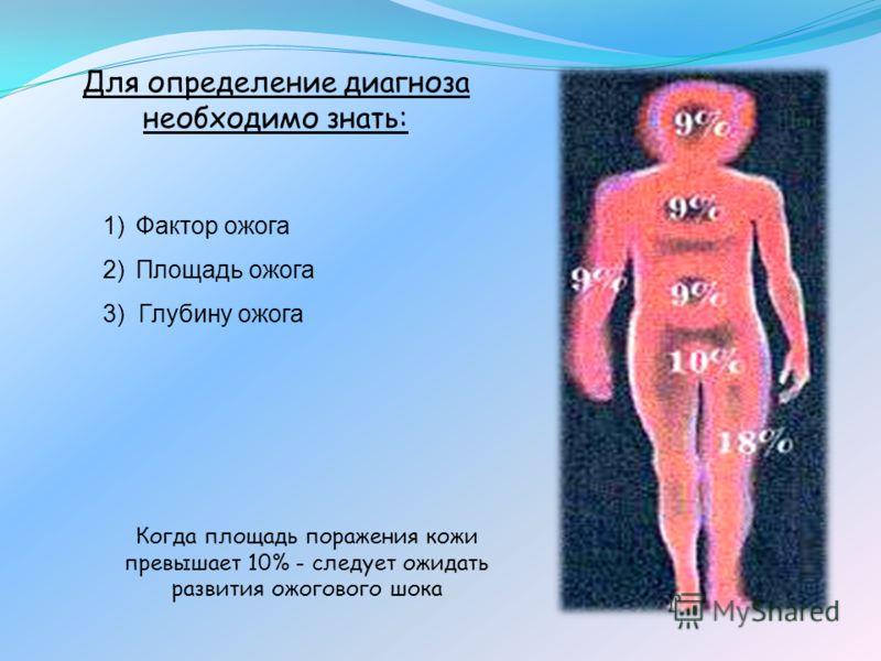 Для определение диагноза необходимо знать: 1)Фактор ожога 2)Площадь ожога 3) Глубину ожога Когда площадь поражения кожи превышает 10% - следует ожидать развития ожогового шока