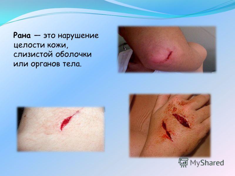 Рана это нарушение целости кожи, слизистой оболочки или органов тела.