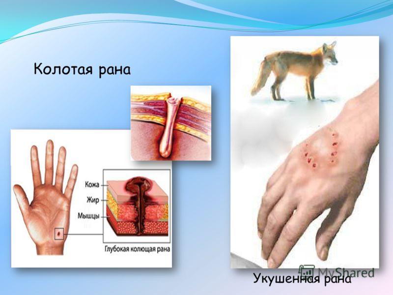Колотая рана Укушенная рана