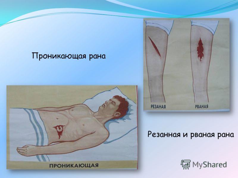 Проникающая рана Резанная и рваная рана