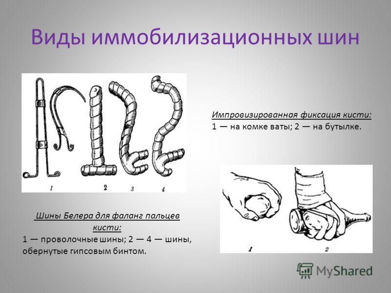 Виды иммобилизационных шин Шины Белера для фаланг пальцев кисти: 1 проволочные шины; 2 4 шины, обернутые гипсовым бинтом. Импровизированная фиксация кисти: 1 на комке ваты; 2 на бутылке.
