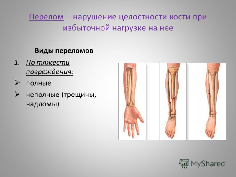 Перелом – нарушение целостности кости при избыточной нагрузке на нее Виды переломов 1.По тяжести повреждения: полные неполные (трещины, надломы)