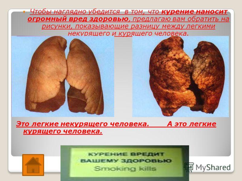 Чтобы наглядно убедится в том, что курение наносит огромный вред здоровью, предлагаю вам обратить на рисунки, показывающие разницу между легкими некурящего и курящего человека. Это легкие некурящего человека. А это легкие курящего человека.