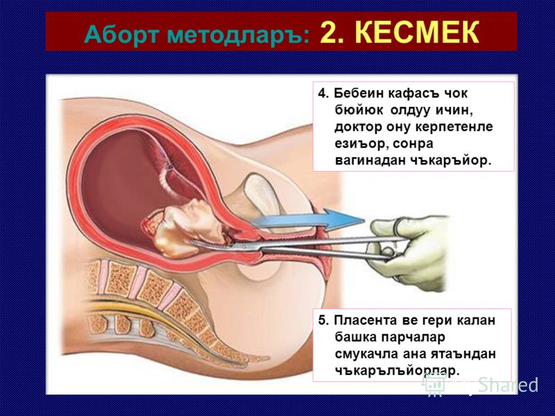 Аборт методларъ: 2. КЕСМЕК 3. Доктор, гери калан беден парчаларъ тек керпетенле тутуп дъшаръ чъкаръйор.
