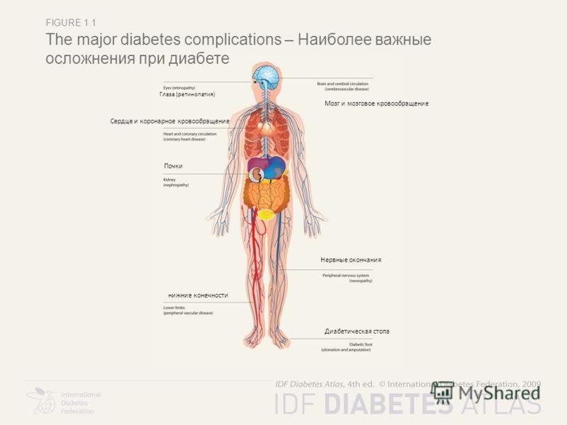 FIGURE 1.1 The major diabetes complications – Наиболее важные осложнения при диабете Глаза (ретинопатия) Мозг и мозговое кровообращение Сердце и коронарное кровообращение Почки нижние конечности Нервные окончания Диабетическая стопа
