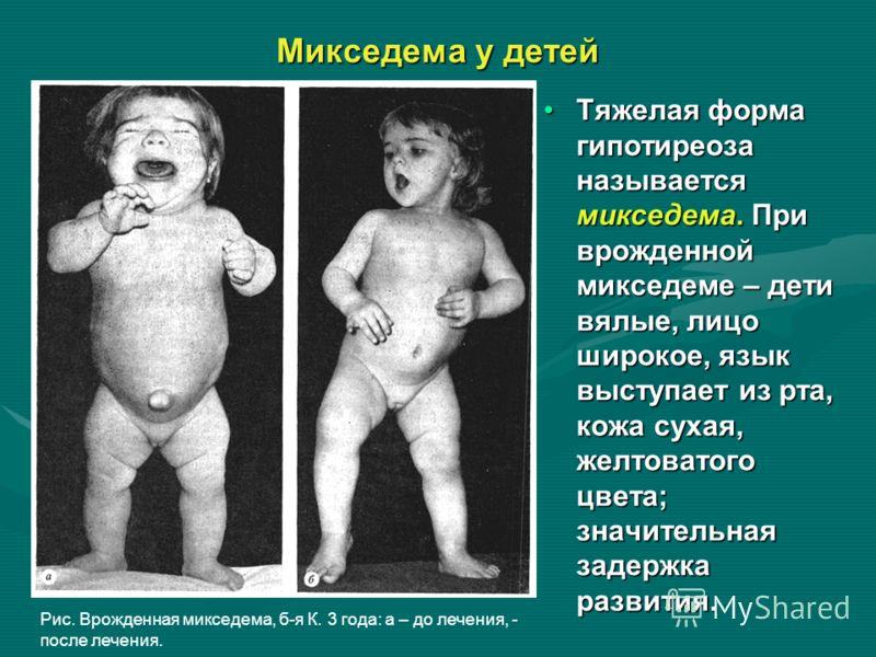 Микседема у детей Тяжелая форма гипотиреоза называется микседема. При врожденной микседеме – дети вялые, лицо широкое, язык выступает из рта, кожа сухая, желтоватого цвета; значительная задержка развития. Рис. Врожденная микседема, б-я К. 3 года: а –