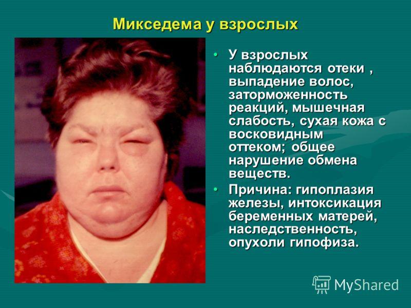 Микседема у взрослых У взрослых наблюдаются отеки, выпадение волос, заторможенность реакций, мышечная слабость, сухая кожа с восковидным оттеком; общее нарушение обмена веществ. Причина: гипоплазия железы, интоксикация беременных матерей, наследствен