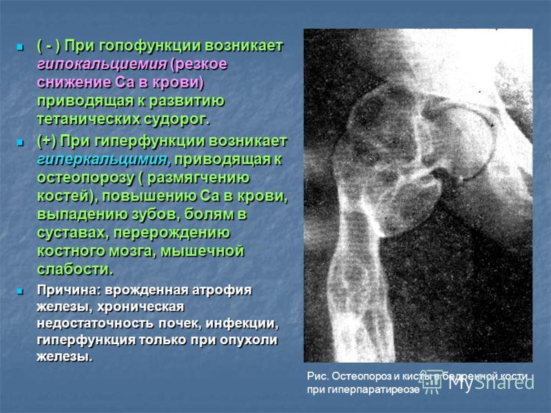 ( - ) При гопофункции возникает гипокальциемия (резкое снижение Са в крови) приводящая к развитию тетанических судорог. ( - ) При гопофункции возникает гипокальциемия (резкое снижение Са в крови) приводящая к развитию тетанических судорог. (+) При ги