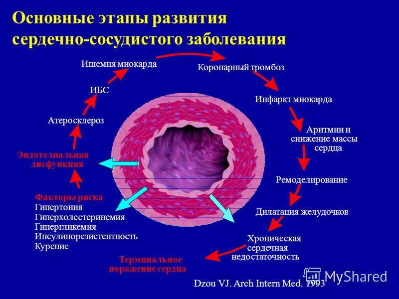 Основные этапы развития сердечно-сосудистого заболевания Dzou VJ. Arch Intern Med. 1993