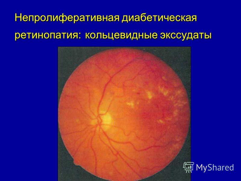 Непролиферативная диабетическая ретинопатия: кольцевидные экссудаты