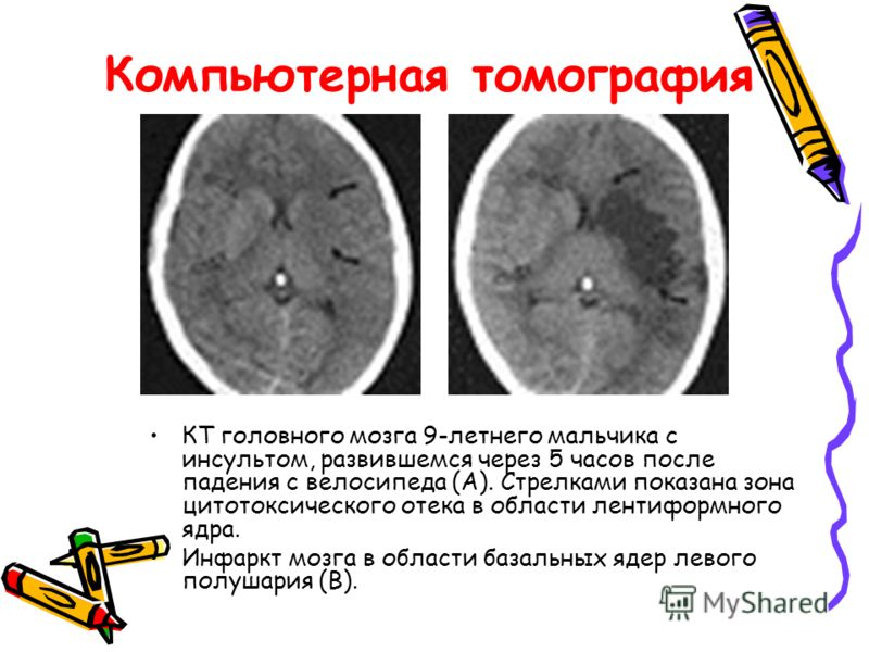 Компьютерная томография КТ головного мозга 9-летнего мальчика с инсультом, развившемся через 5 часов после падения с велосипеда (А). Стрелками показана зона цитотоксического отека в области лентиформного ядра. Инфаркт мозга в области базальных ядер л