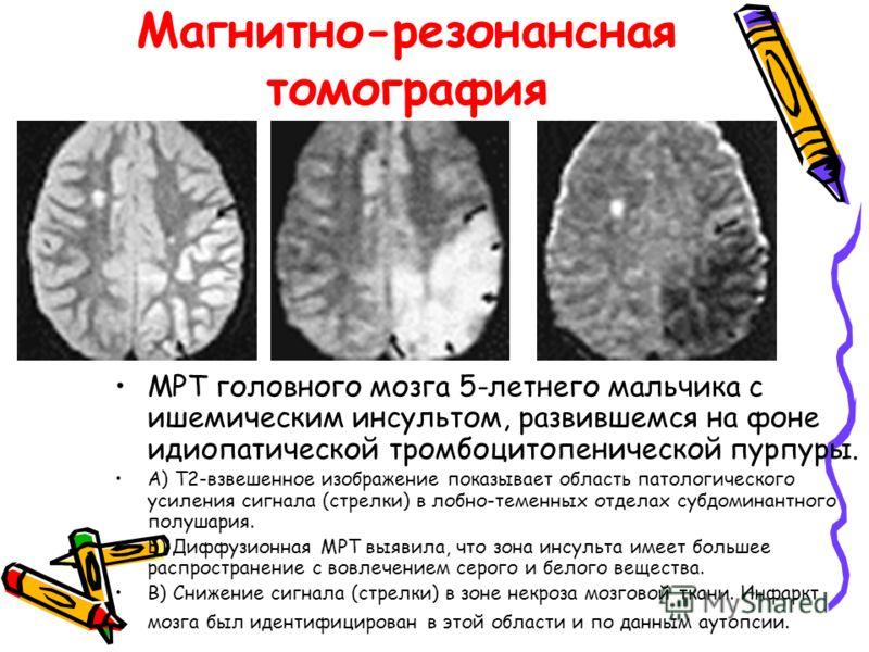 Магнитно-резонансная томография МРТ головного мозга 5-летнего мальчика с ишемическим инсультом, развившемся на фоне идиопатической тромбоцитопенической пурпуры. A) T2-взвешенное изображение показывает область патологического усиления сигнала (стрелки