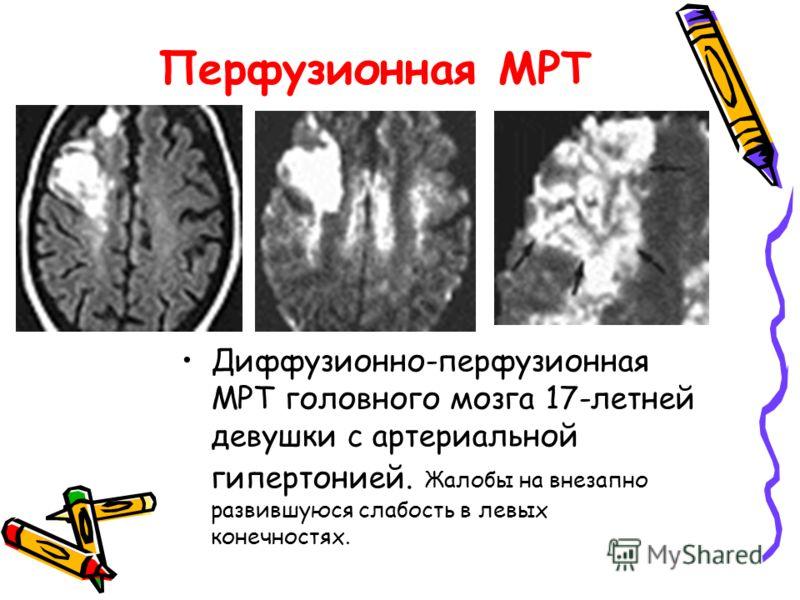 Перфузионная МРТ Диффузионно-перфузионная МРТ головного мозга 17-летней девушки с артериальной гипертонией. Жалобы на внезапно развившуюся слабость в левых конечностях.