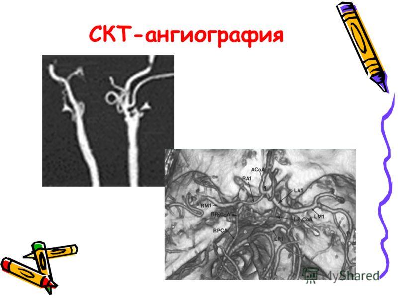 СКТ-ангиография