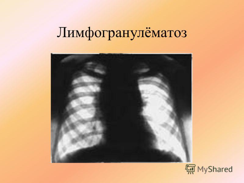 Лимфогранулёматоз