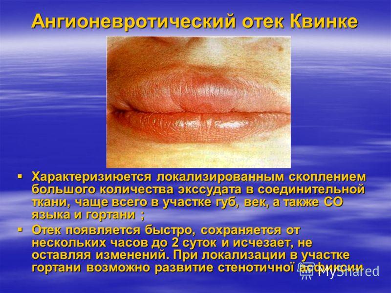 Повреждения обусловлены аллергией Реакции гиперчувствительности Реакции гиперчувствительности А) немедленного типа: -ангионевротический отек Квинке, -крапивница Б) замедленного типа: - токсико-алергические медикаментозные стоматиты В) системные аллер