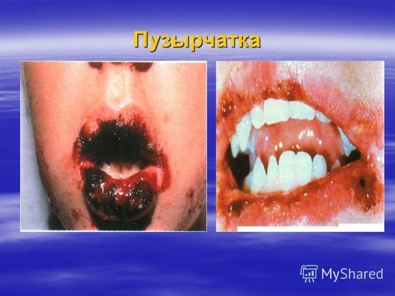 Пузырчатка Элемент поражения – напряжены волдыри, которые разрываются, обнажая эрозийную поверхность; Элемент поражения – напряжены волдыри, которые разрываются, обнажая эрозийную поверхность; Позитивный симптом Никольского Позитивный симптом Никольс
