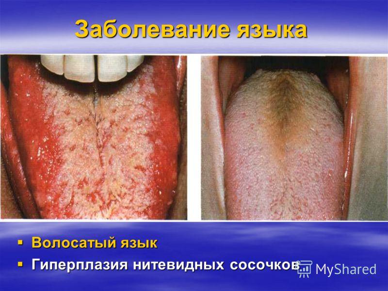 Заболевание языка Десквамативный глоссит Десквамативный глоссит преимущественно при болезнях пищеварительного канала преимущественно при болезнях пищеварительного канала Участки десквамации красного цвета сопровождаются болезненностью, изжогой Участк