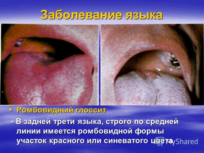 Заболевание языка Волосатый язык Волосатый язык Гиперплазия нитевидных сосочков Гиперплазия нитевидных сосочков