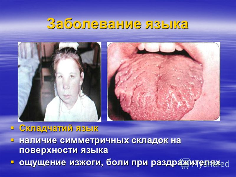 Заболевание языка Ромбовидный глоссит Ромбовидный глоссит - В задней трети языка, строго по средней линии имеется ромбовидной формы участок красного или синеватого цвета - В задней трети языка, строго по средней линии имеется ромбовидной формы участо
