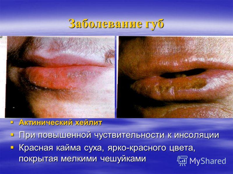Заболевание губ Ексфолиативный хейлит Ексфолиативный хейлит - Полосы тонких чешуек на грани красной каймы и СО