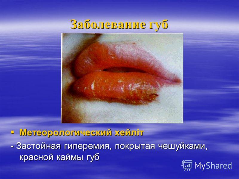 Заболевание губ Актинический хейлит Актинический хейлит При повышенной чуствительности к инсоляции При повышенной чуствительности к инсоляции Красная кайма суха, ярко-красного цвета, покрытая мелкими чешуйками Красная кайма суха, ярко-красного цвета,