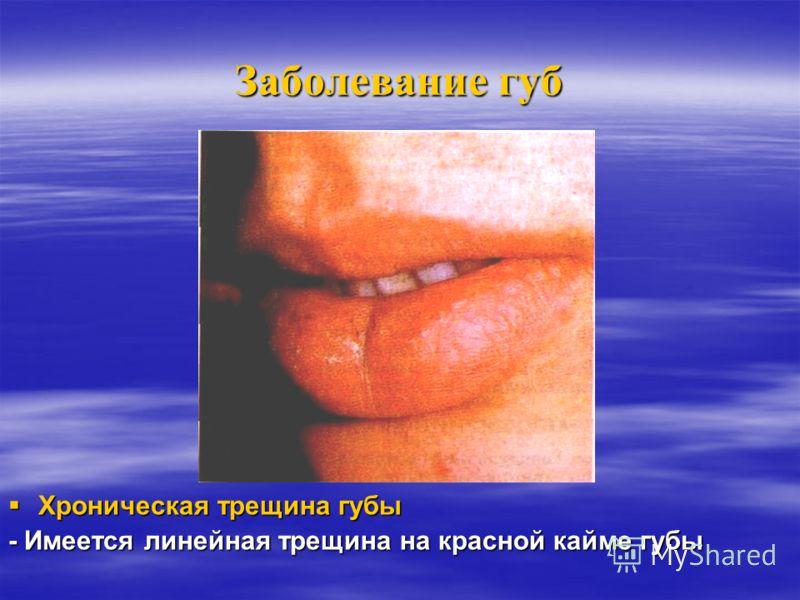 Заболевание губ Метеорологический хейліт Метеорологический хейліт - Застойная гиперемия, покрытая чешуйками, красной каймы губ