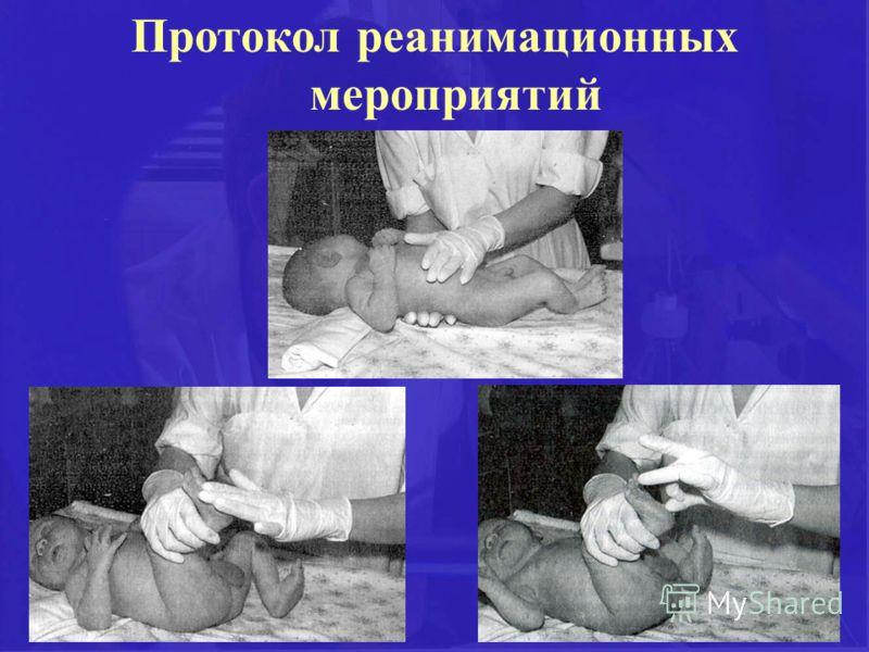 Протокол реанимационных мероприятий при асфиксии